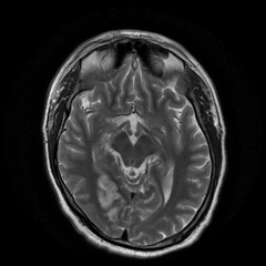 Recurrent cerebrovascular accidents in young man with patent foramen ovale and thrombophilia