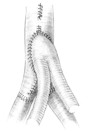 Rozległa fenestracja poprzez udrożnienie aorty oraz tętnic nerkowych jako doraźne postępowanie wostrym piersiowo-brzusznym rozwarstwieniu aorty typu Stanford B powikłanym niedokrwieniem nerki ikończyny dolnej