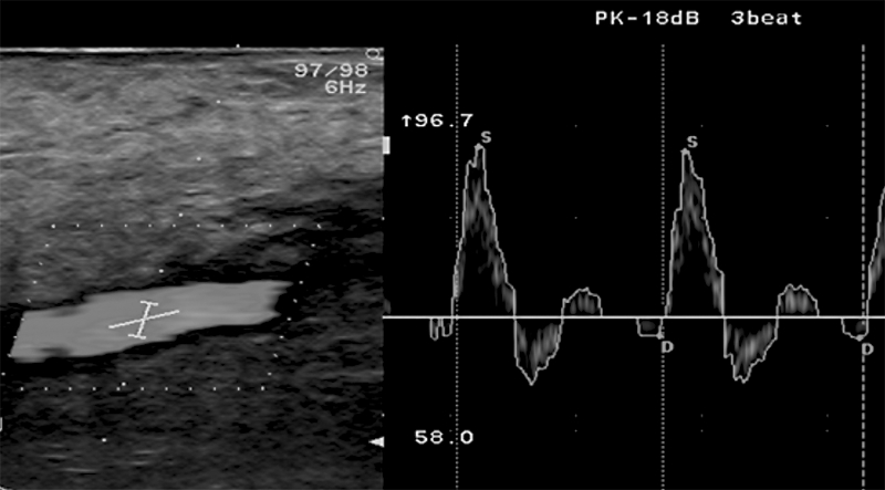Cystic adventitial disease of the popliteal artery in ayoung woman – acase report