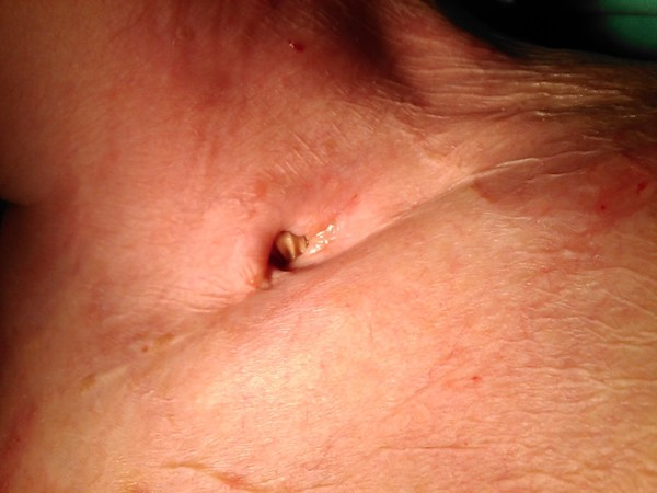 Hybrid treatment of the infected carotid-subclavian graft complicated by the septic haemorrhage