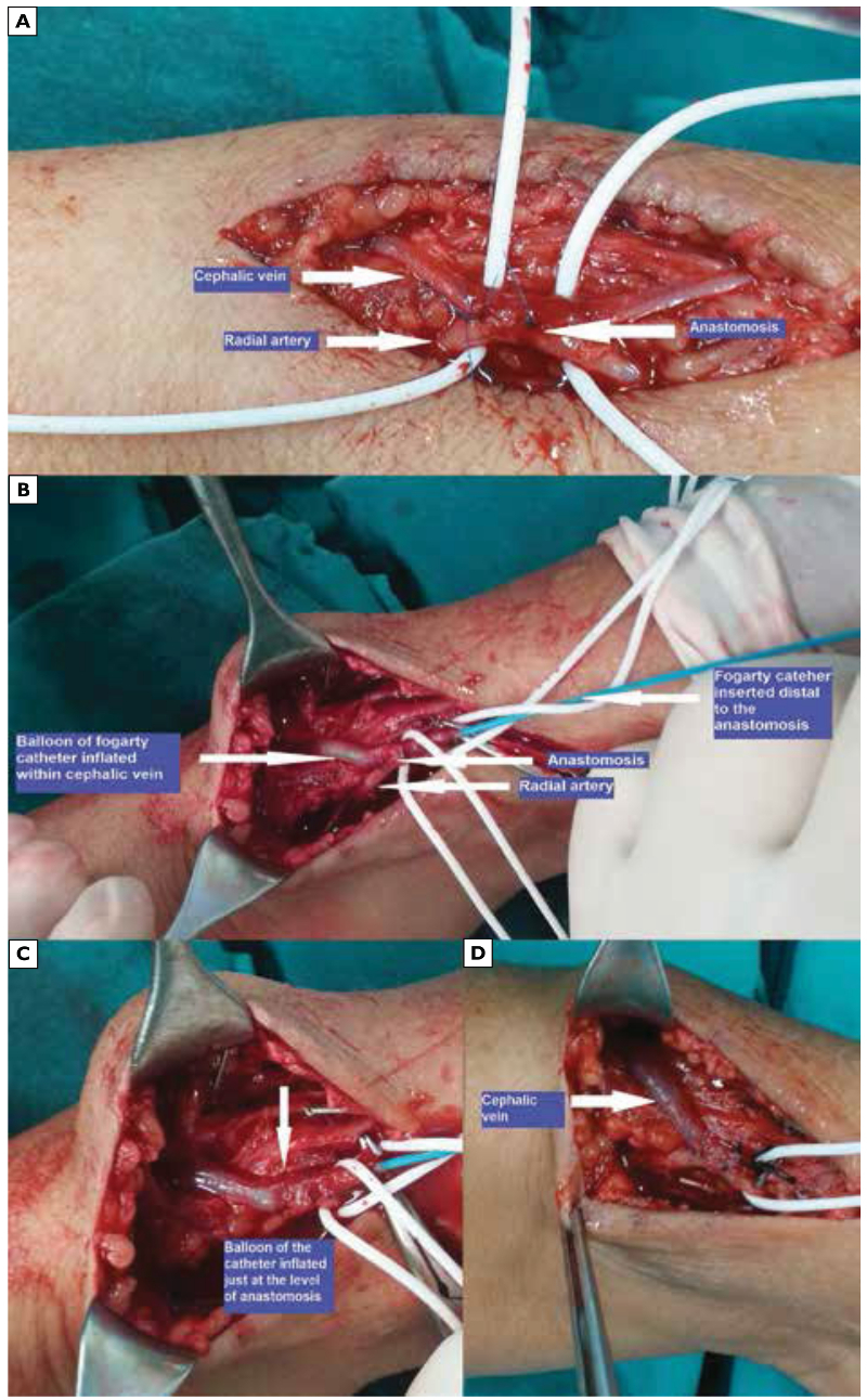Fogarty® catheter dilatation of veins smaller than 2.5 mm after completion of the anastomosis during arteriovenous fistula creation