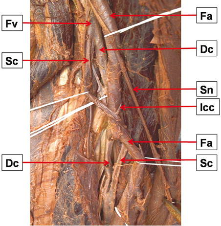An Interconnected Duplicated Femoral Vein And Its Clinical