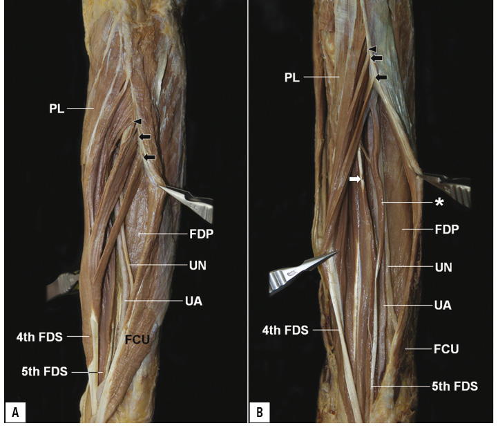 Separate muscle bundles of the flexor digitorum ...