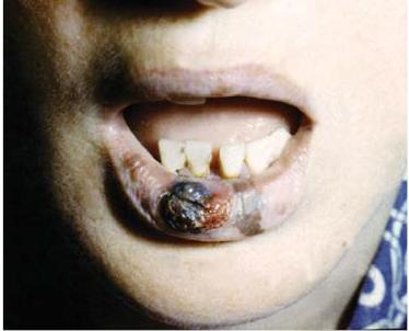 Czerniak Złośliwy Błony śluzowej Jamy Ustnej