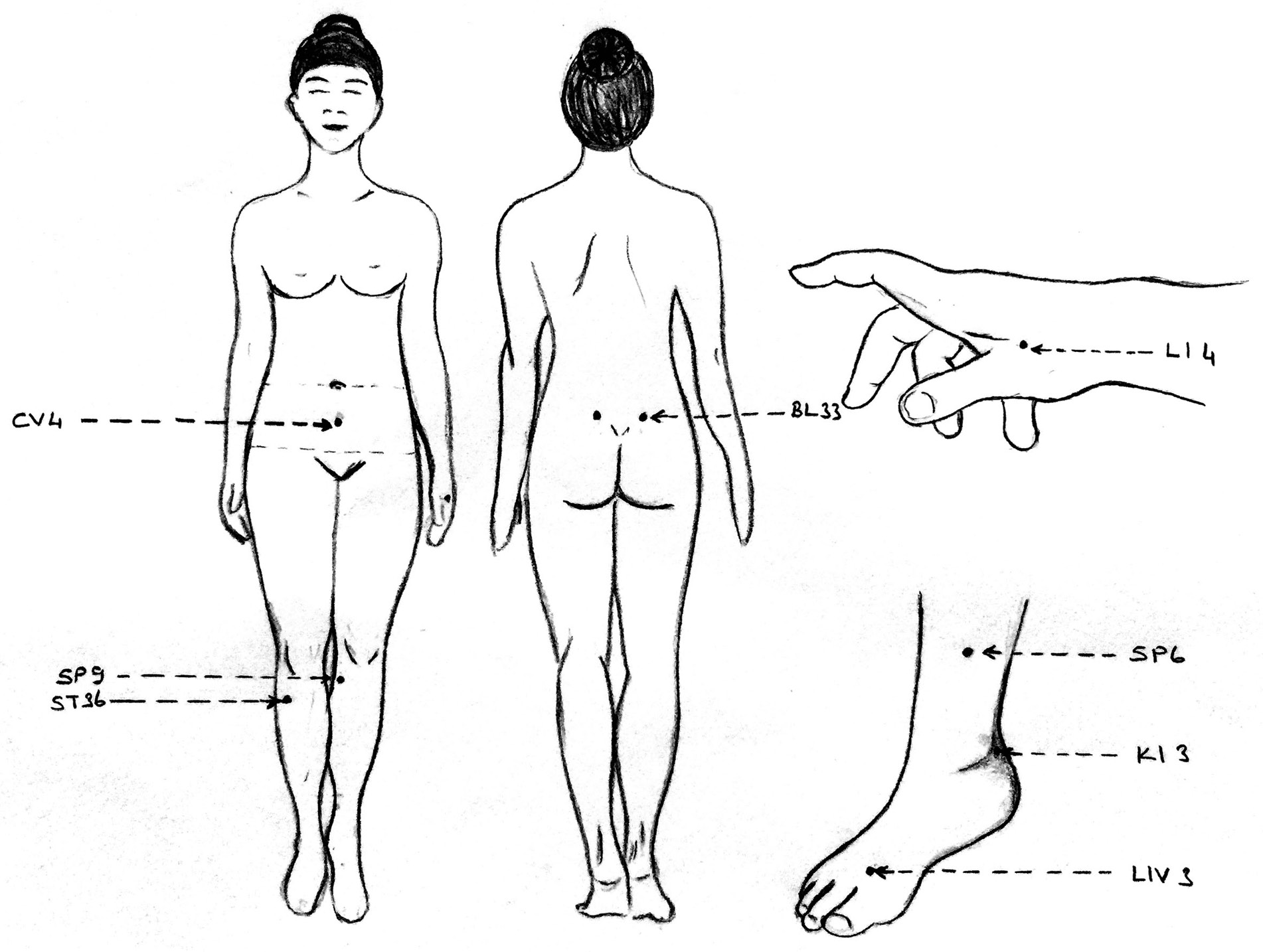 Complete response to acupuncture therapy in female patients with
